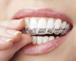 Clear Aligners at Raptou Family Dental, Columbus, OH