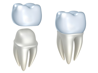 Does a Dental Crown Need Special Treatment to Maintain?