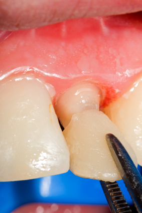 Image of a dental veneer being placed in a patient's mouth at Raptou Family Dental.