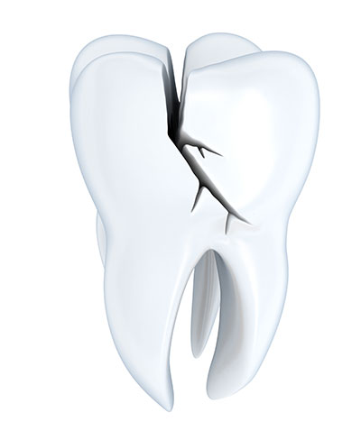 How To Manage A Cracked Molar